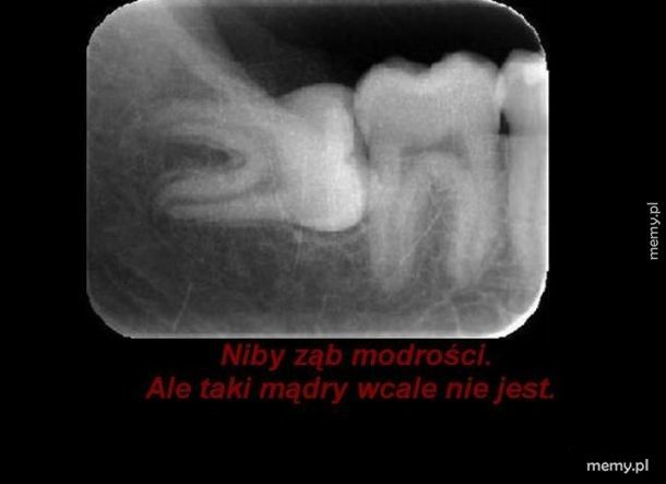 Ząb modrości.