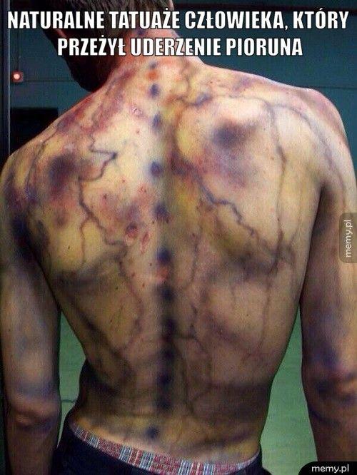 Naturalne tatuaże człowieka, który przeżył uderzenie pioruna