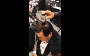 Japoński patent na łysienie