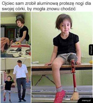 Proteza dla córki